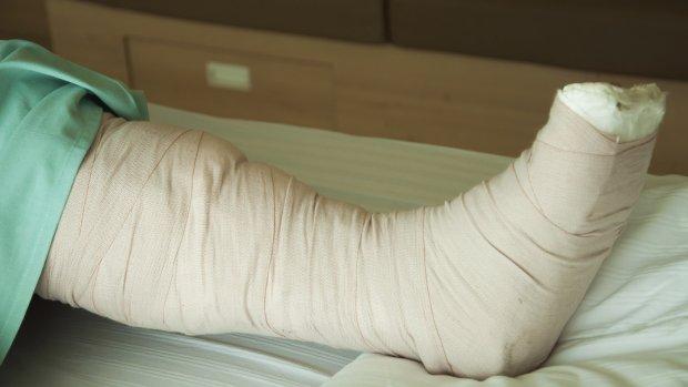 gebroken-been-ziekenhuisbed-gips-thinkstock-1600_0